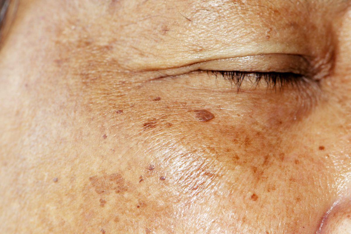 Plamy starcze i piegi na twarzy kobiety po 50-tce